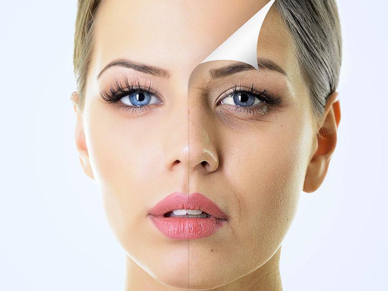 skin-around-the-eyes (2)